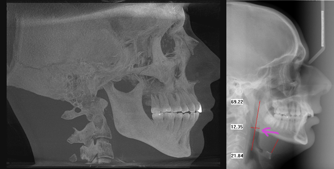 Can mewing fix a recessed chin? – Main Forum – Correction
